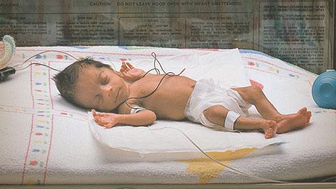 Pregunta y respuesta sobre bebés prematuros